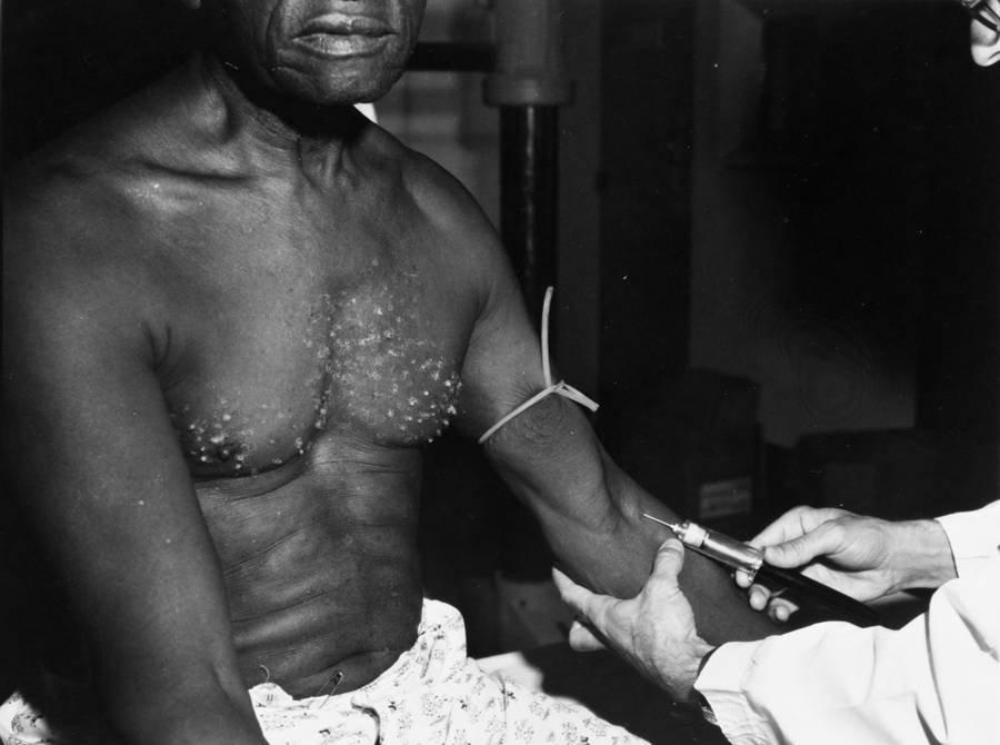 Tuskegee-Patient